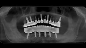 conelog-implant